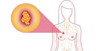 turmeric-breast-cancer