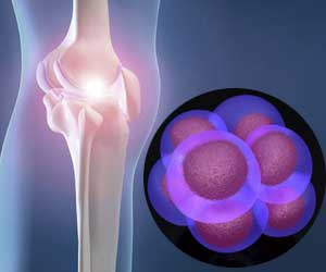Are Stem Cells An Alternative to Total Knee Replacement?